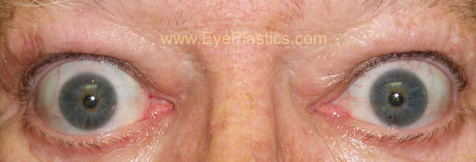 Thyroid Related Eye Disease Graves Grave S Bulging Eyes